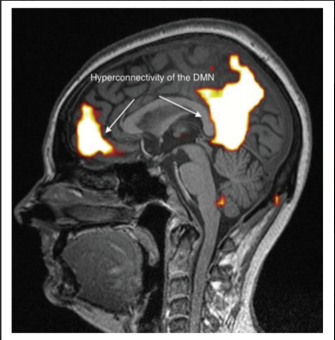 Figure 4 Abnormal functional MRI brain scan in patients complaining of EHS after long-term exposure to EMF, according to Reference [31].